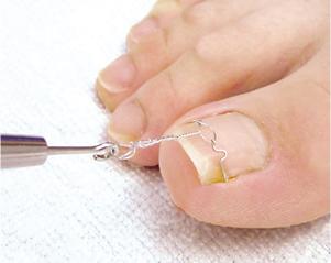 巻き爪矯正VHO法