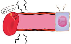 固い毛細血管と細胞