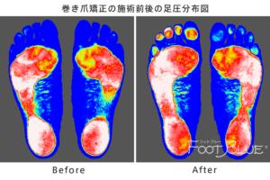 巻き爪矯正後の足底分圧の変化